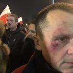 Wielka demonstracja w obronie wolności mediów. Dziennikarze wyrzuceni z Sejmu